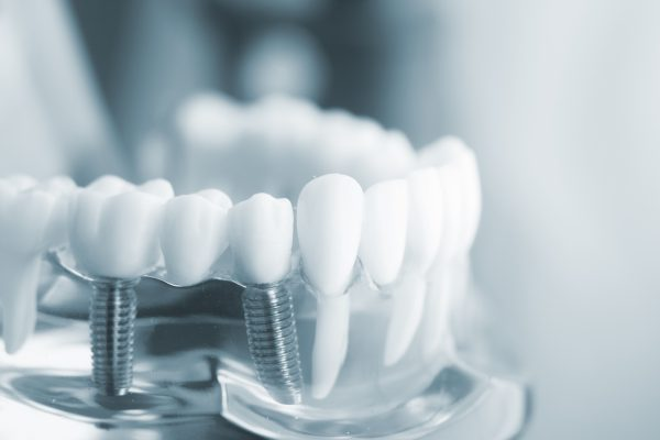 Valor implantes dentales santiago chile