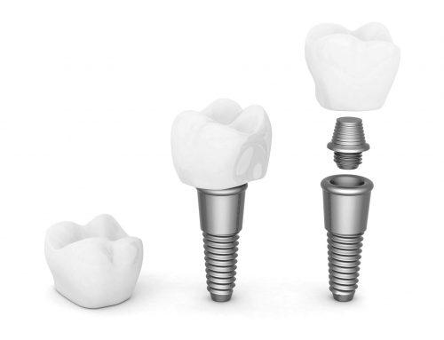 ¿Cuáles son los tipos de implante dental y para qué sirven?