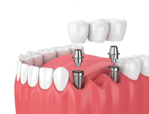 ¿Qué es el puente sobre implantes dentales?